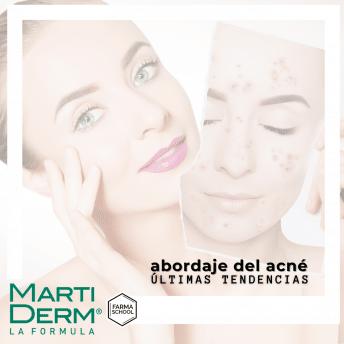 Abordaje del acné con MartiDerm: últimas tendencias